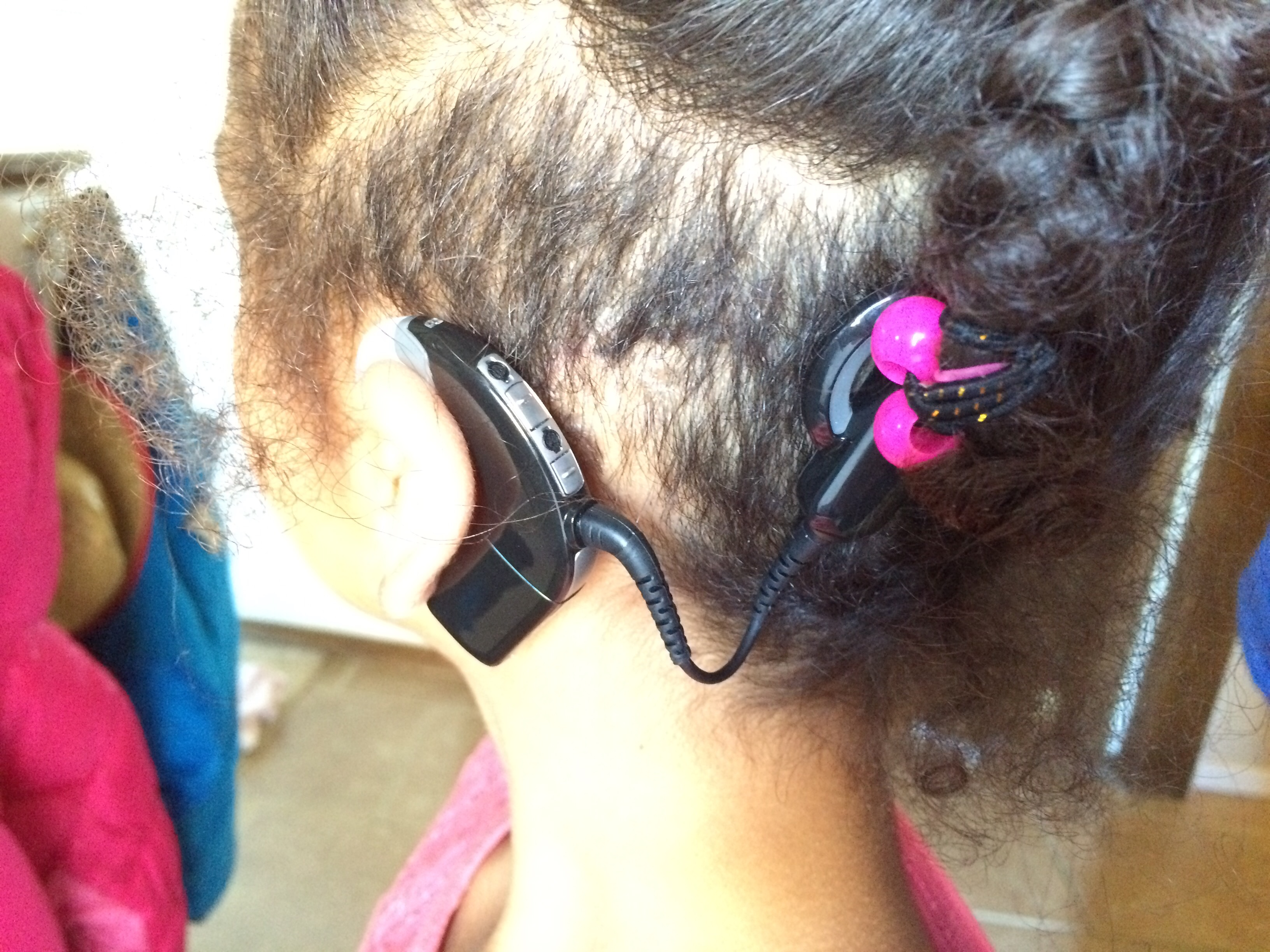 the effects of cochlear implants on Methods in a prospective cohort study, 27 children with bilateral profound  hearing loss (all candidates for cochlear implantation) were evaluated for their.